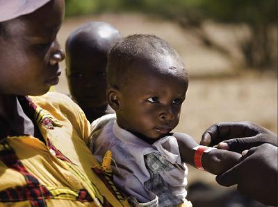 41 percent of Nigerian children stunted on account of malnutrition – FMH