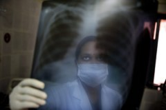 World Tuberculosis Day: Only 30% of Nigerians are aware of their status